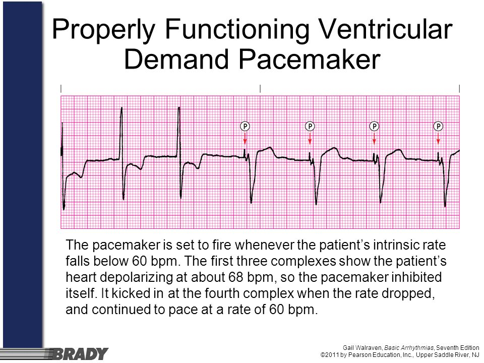 Properly Functioning Ventricular Demand Pacemaker