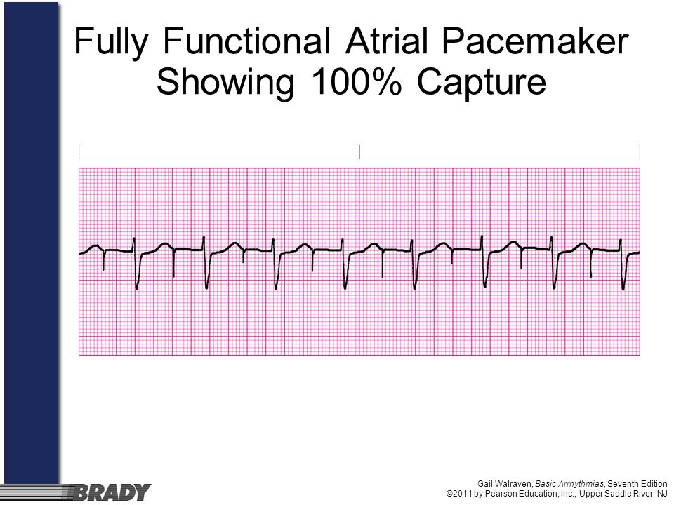 Fully Functional Atrial Pacemaker Showing 100% Capture