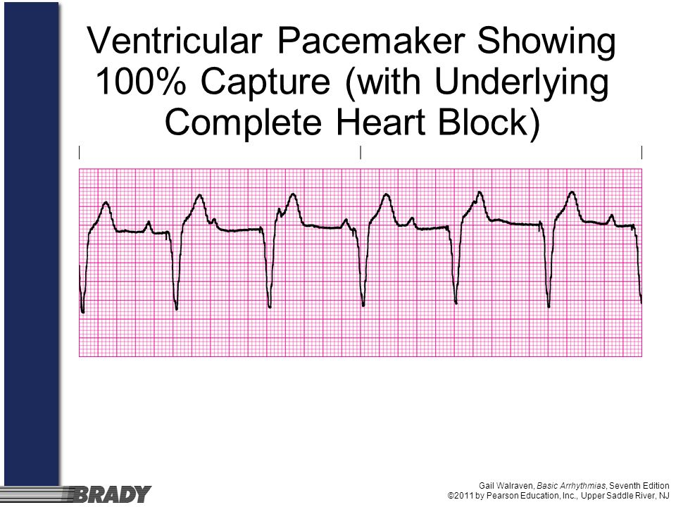 Ventricular Pacemaker Showing 100% Capture (with Underlying Complete Heart Block)