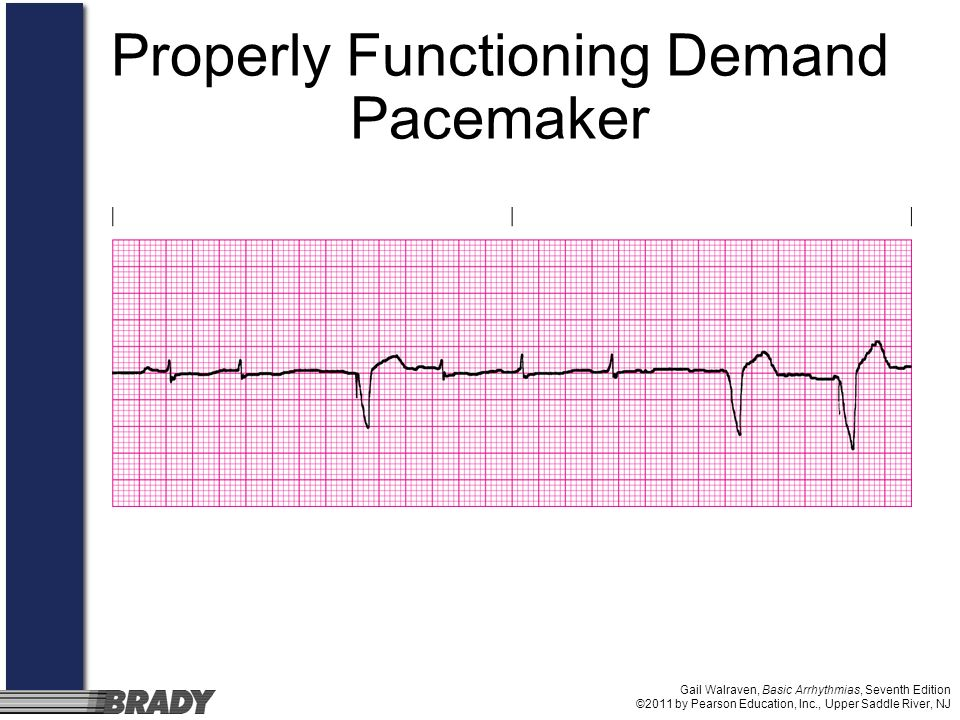 Properly Functioning Demand Pacemaker