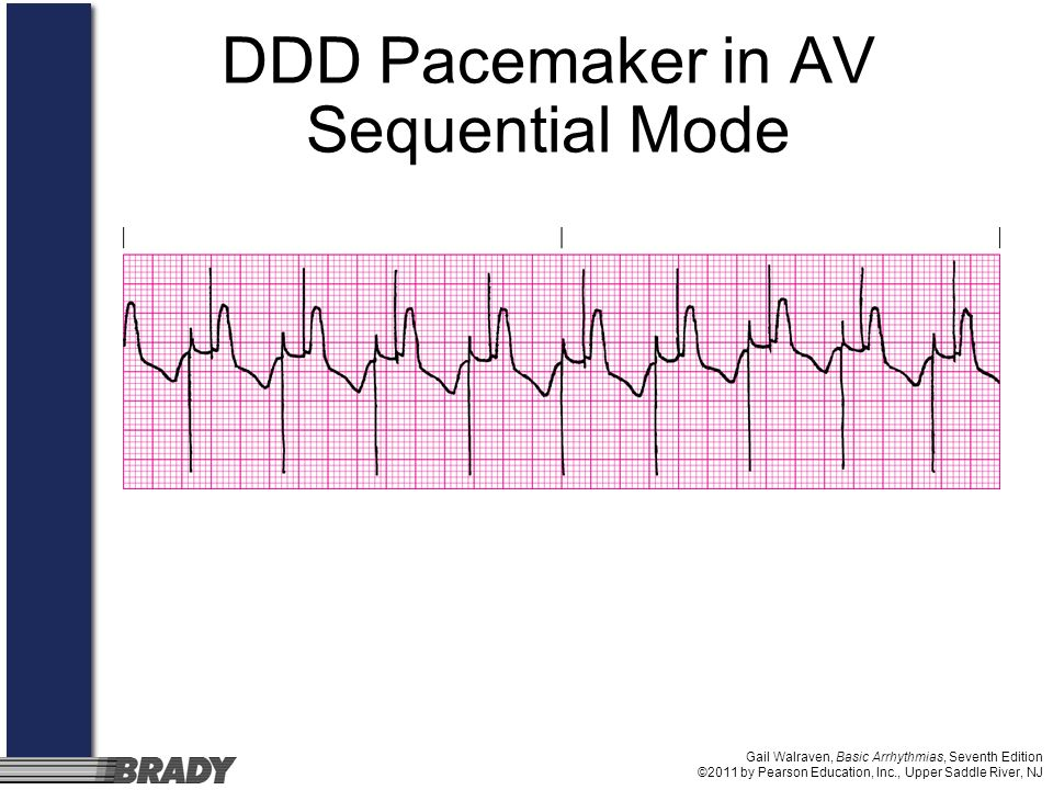 DDD Pacemaker in AV Sequential Mode