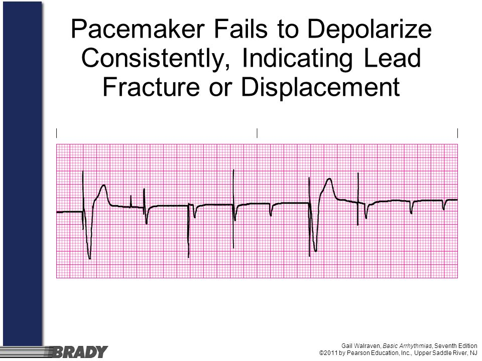 Pacemaker Fails to Depolarize Consistently, Indicating Lead Fracture or Displacement