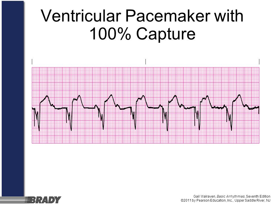 Ventricular Pacemaker with 100% Capture