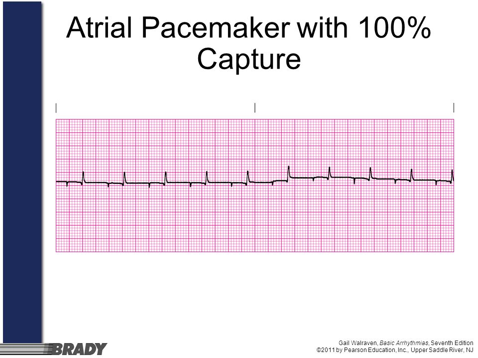 Atrial Pacemaker with 100% Capture