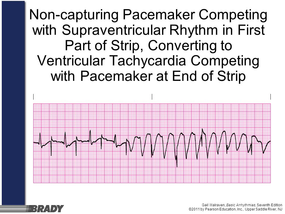Non-capturing Pacemaker Competing with Supraventricular Rhythm in First Part of Strip, Converting to Ventricular Tachycardia Competing with Pacemaker at End of Strip