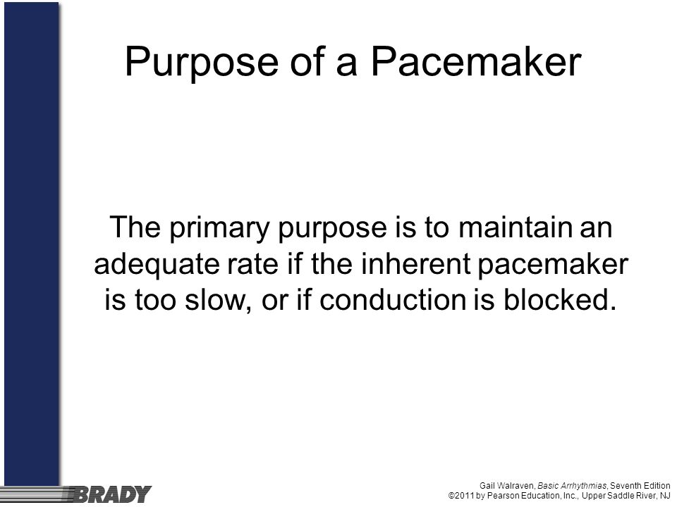 Purpose of a PacemakerThe primary purpose is to maintain an adequate rate if the inherent pacemaker is too slow, or if conduction is blocked.