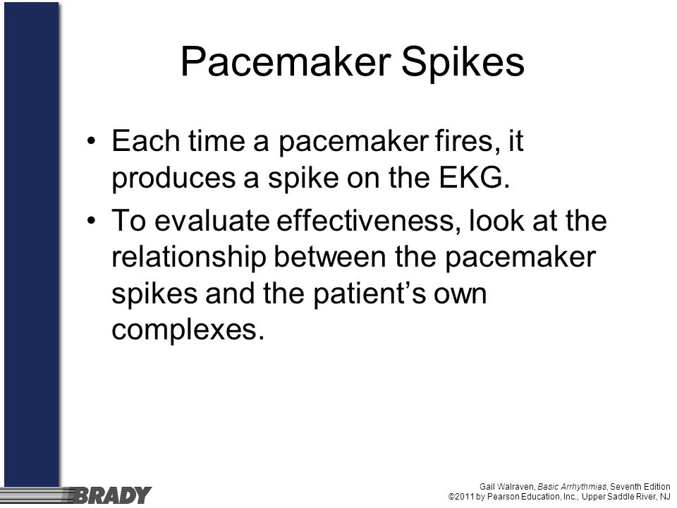Pacemaker Spikes Each time a pacemaker fires, it produces a spike on the EKG.