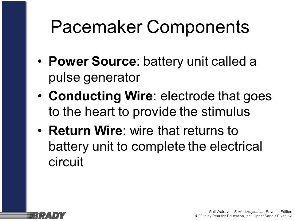 Pacemaker ComponentsPower Source: battery unit called a pulse generator. Conducting Wire: electrode that goes to the heart to provide the stimulus.