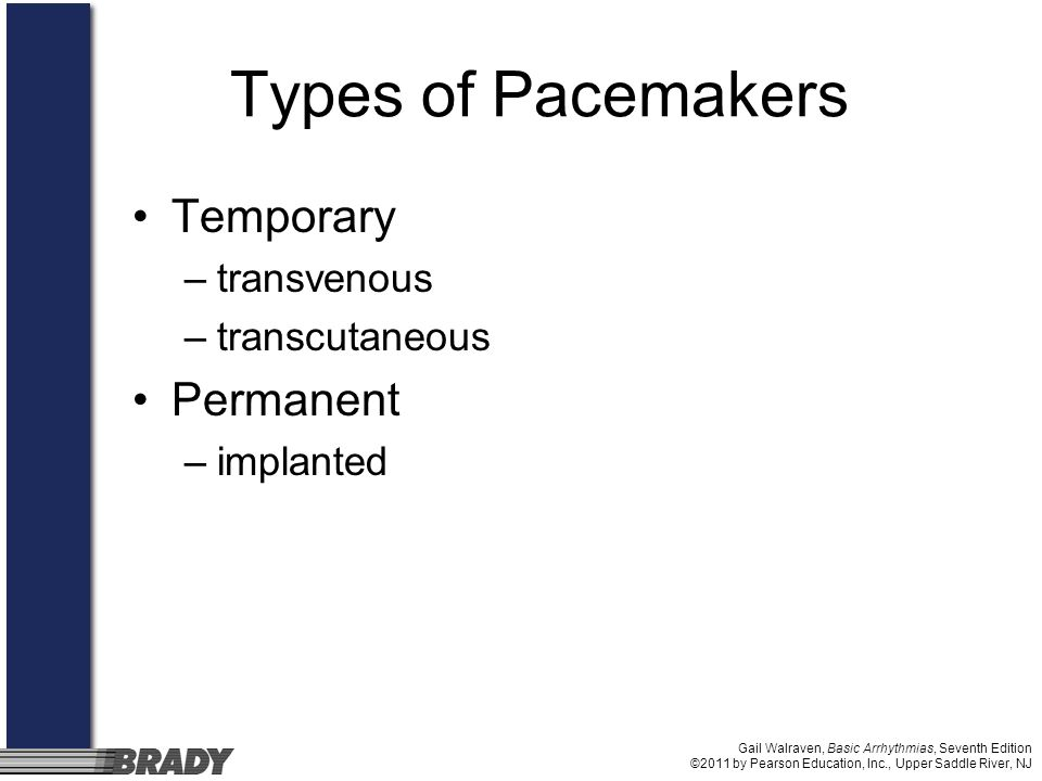 Types of Pacemakers Temporary Permanent transvenous transcutaneous