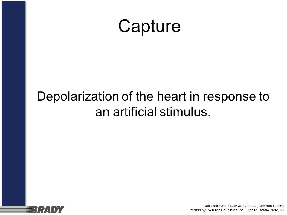 Depolarization of the heart in response to an artificial stimulus.