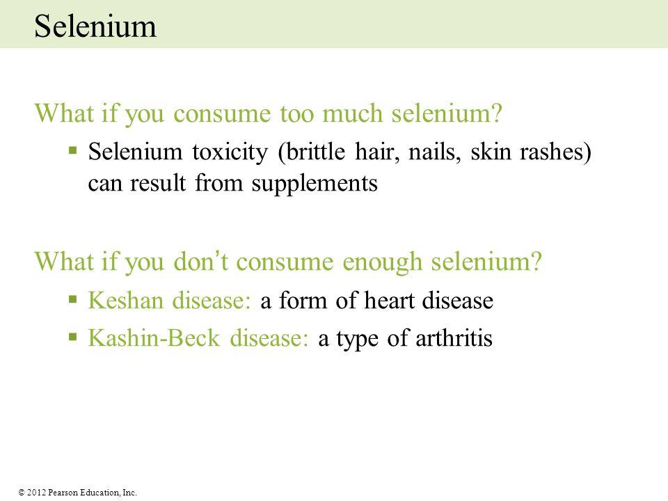Selenium What if you consume too much selenium