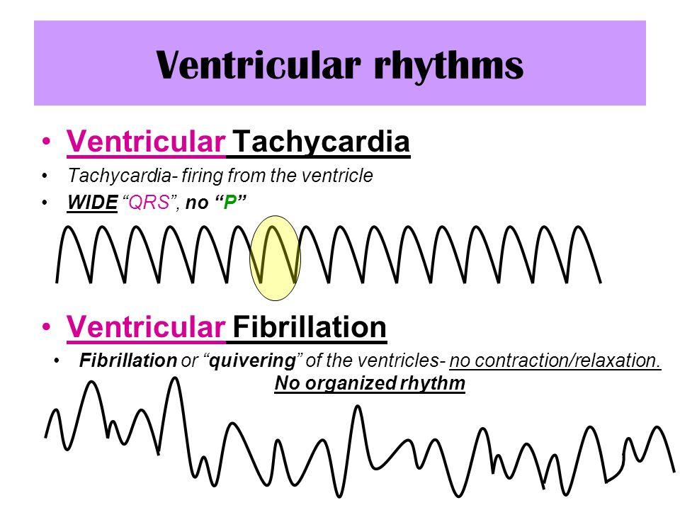 ventricular tachycardia vtac Pulseless v-tach & v-fib algorithm aha 2015 acls algorithm for the treatment of pulseless ventricular tachycardia (vt) and ventricular fibrillation (vf.