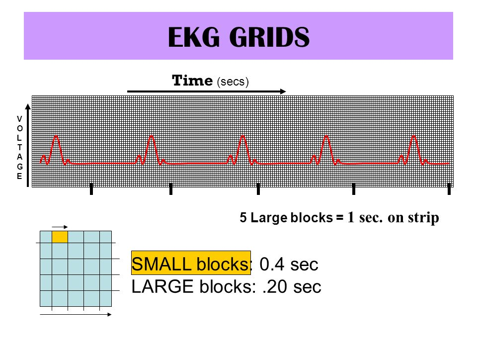 EKG GRIDS SMALL blocks: 0.4 sec LARGE blocks: .20 sec Time (secs)
