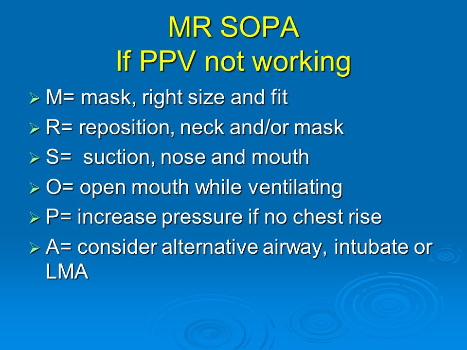 MR SOPA If PPV not working