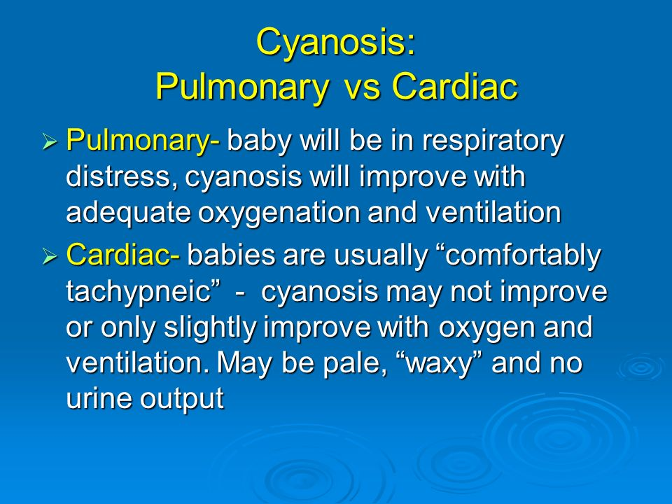 Cyanosis: Pulmonary vs Cardiac