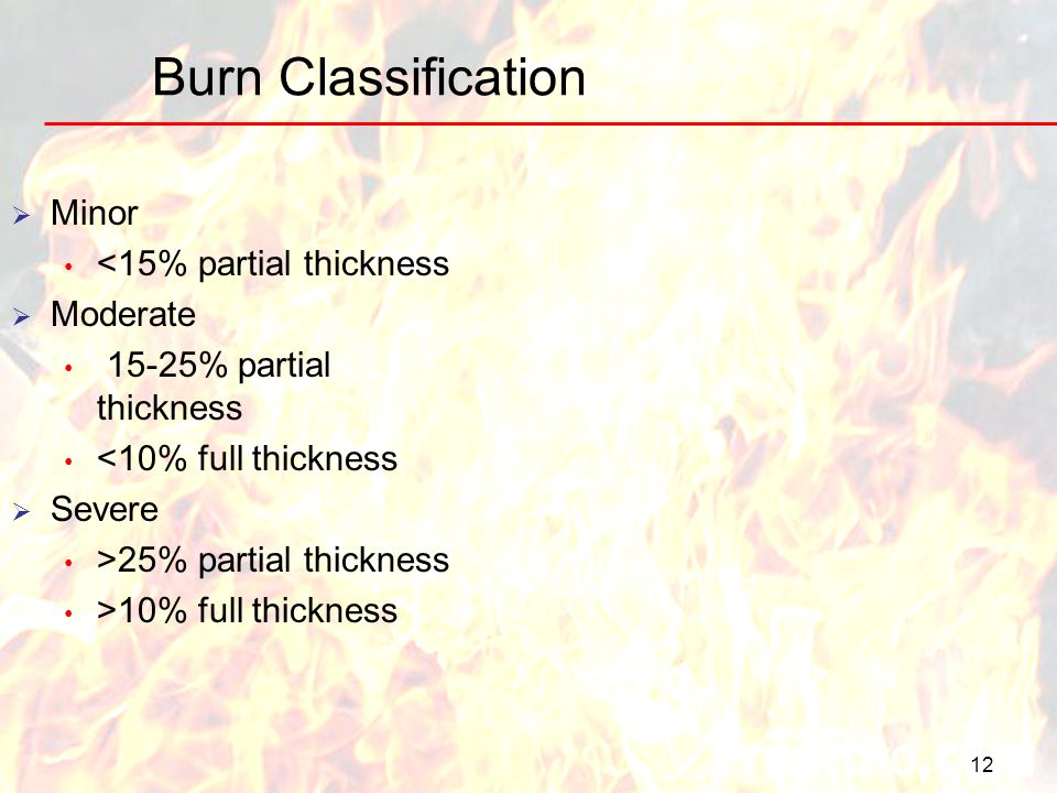 Burn Classification Minor <15% partial thickness Moderate