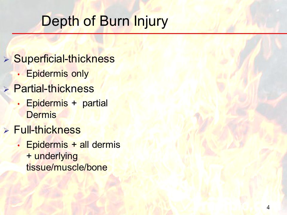 Depth of Burn Injury Superficial-thickness Partial-thickness