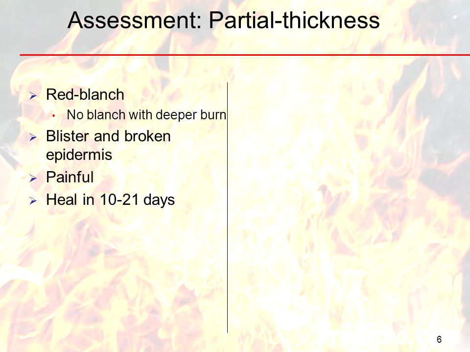 Assessment: Partial-thickness