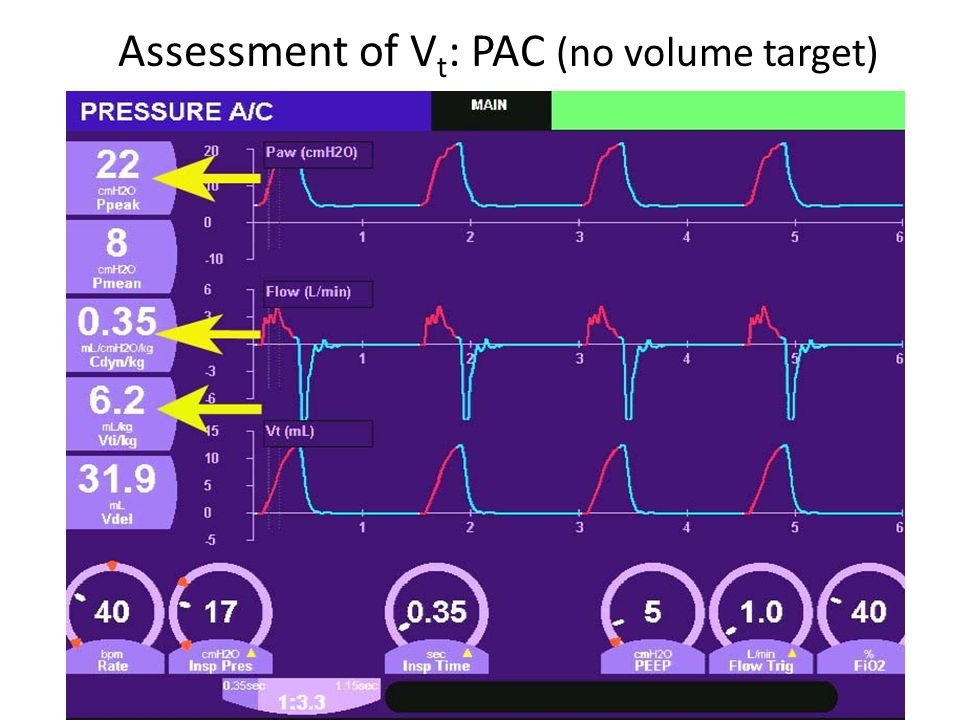 Assessment of Vt: PAC (no volume target)