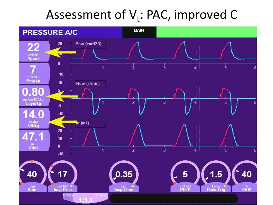 Assessment of Vt: PAC, improved C