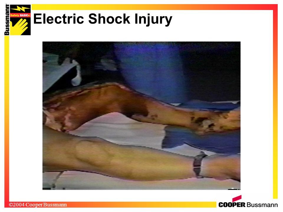Electric Shock Injury