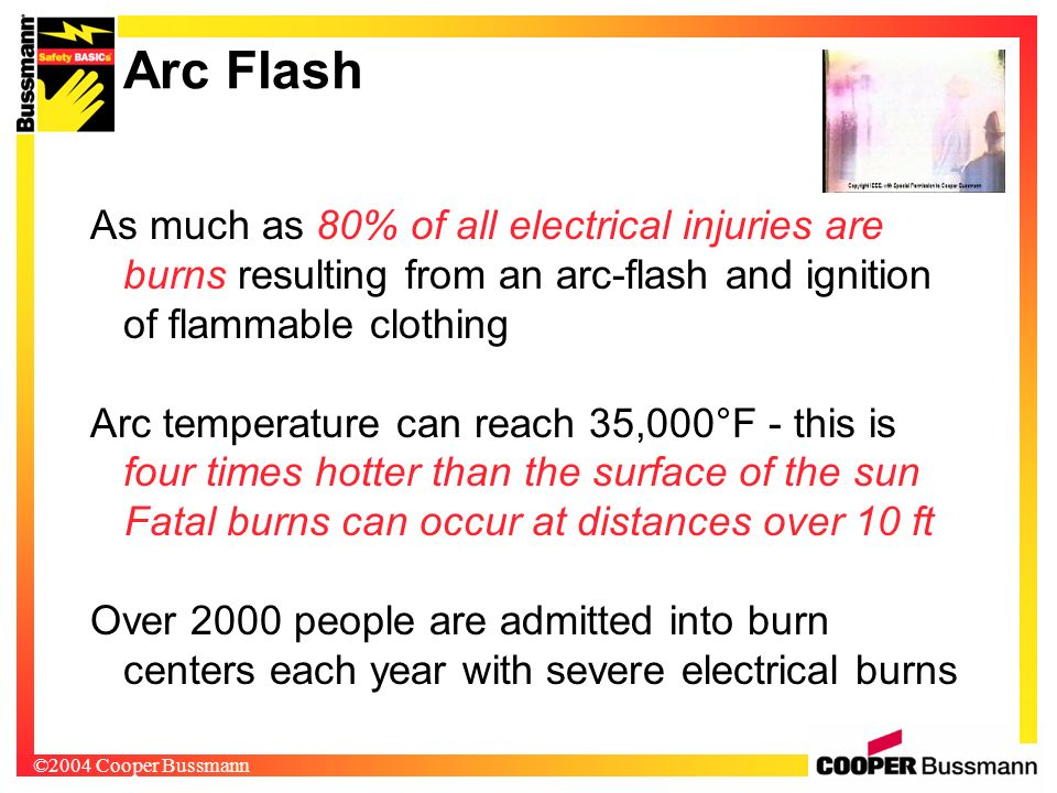 Arc Flash As much as 80% of all electrical injuries are burns resulting from an arc-flash and ignition of flammable clothing.
