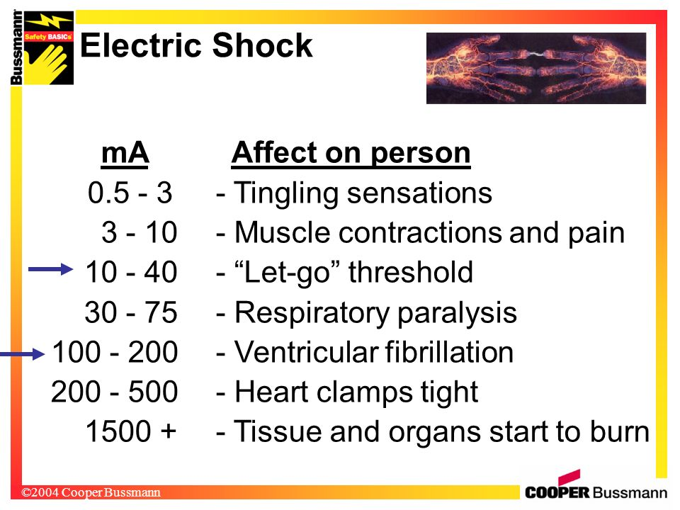 Electric Shock Muscle contractions and pain