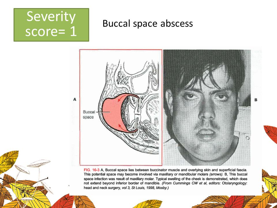 Low severity Severity score= 1 Buccal space abscess