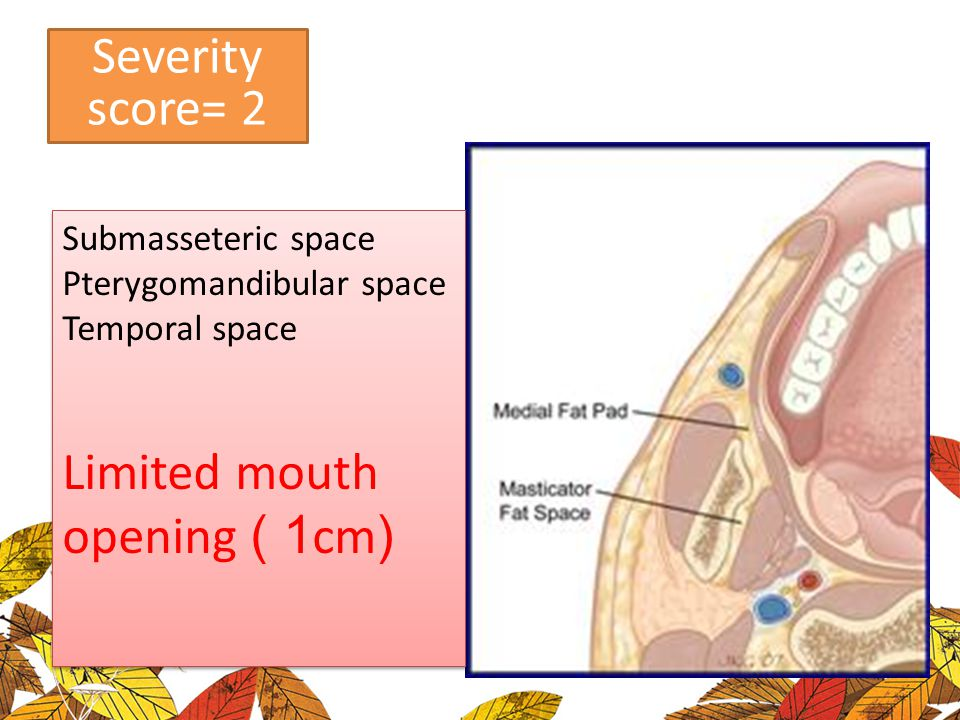 Limited mouth opening ( 1cm)