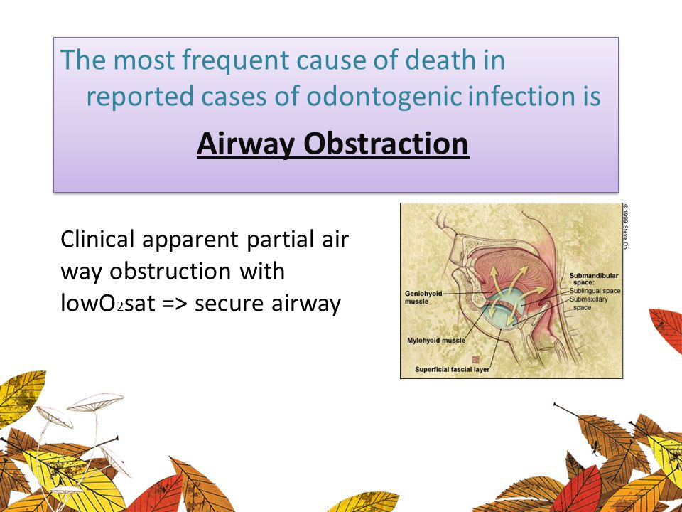 The most frequent cause of death in reported cases of odontogenic infection is Airway Obstraction