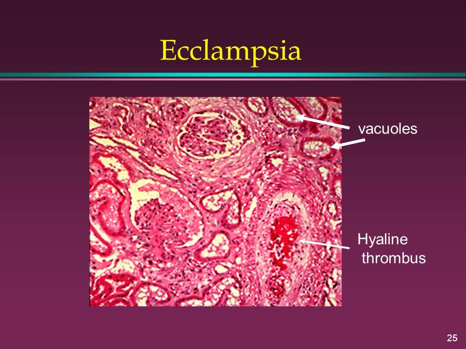 Ecclampsia vacuoles Hyaline thrombus