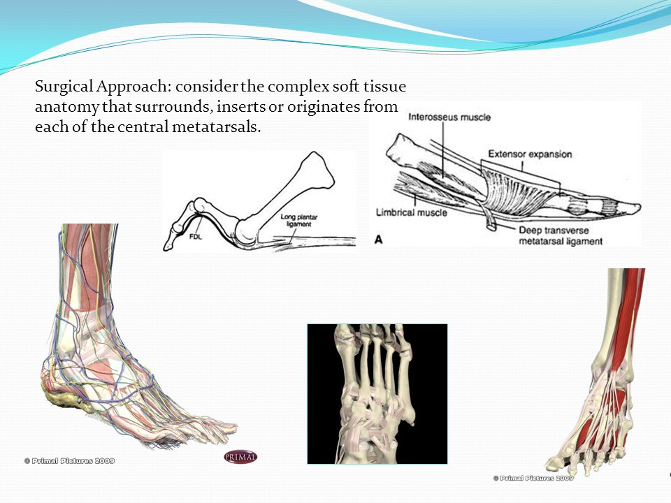 Surgical Approach: consider the complex soft tissue anatomy that surrounds, inserts or originates from each of the central metatarsals.