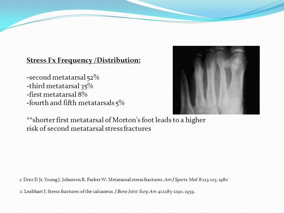 Stress Fx Frequency /Distribution: -second metatarsal 52%