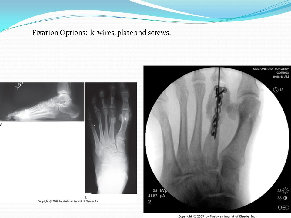 Fixation Options: k-wires, plate and screws.