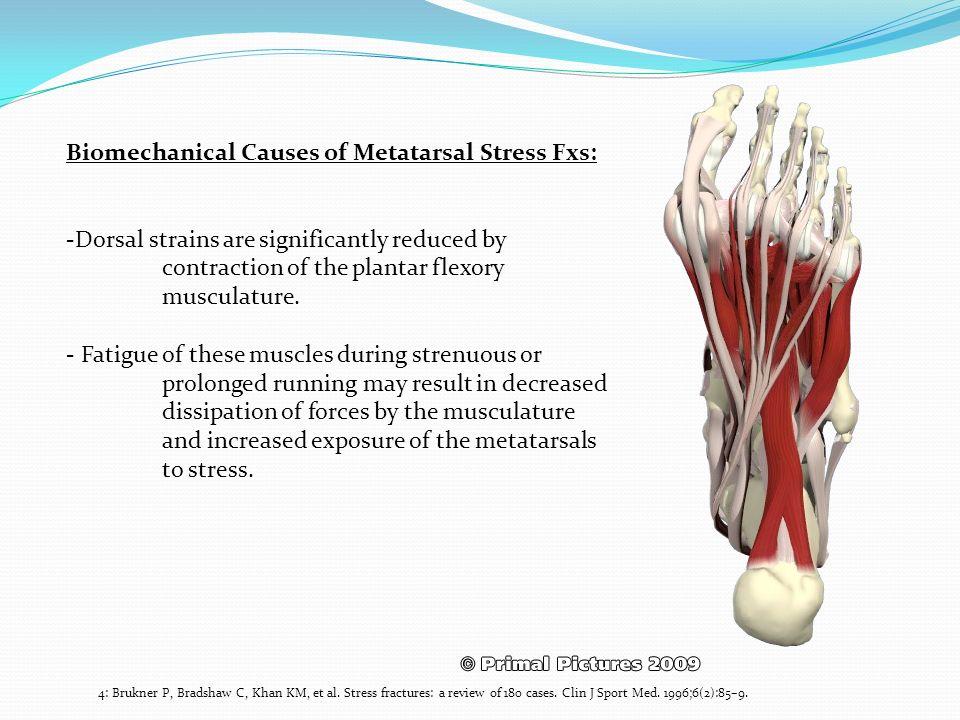 Biomechanical Causes of Metatarsal Stress Fxs: