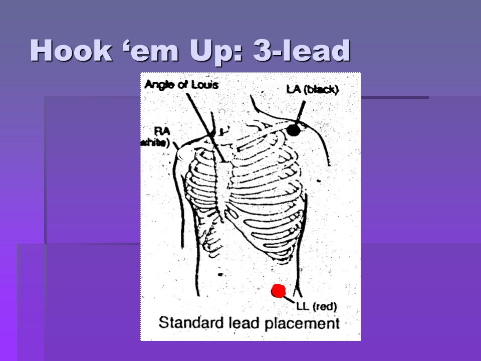 5 Lead EKG Placement