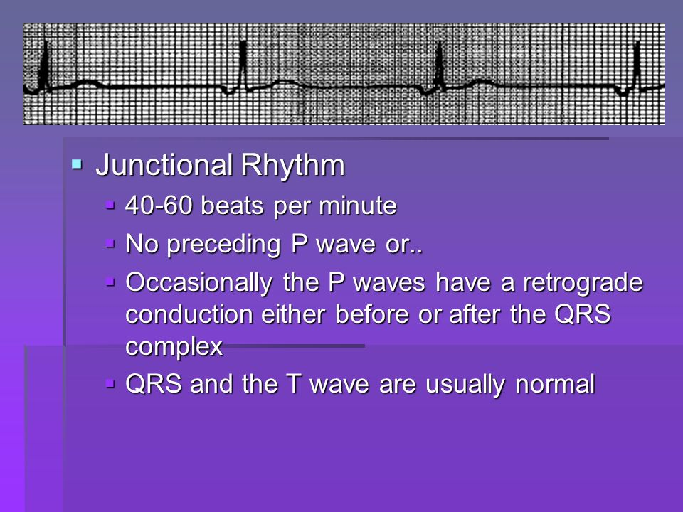 Junctional Rhythm 40-60 beats per minute No preceding P wave or..