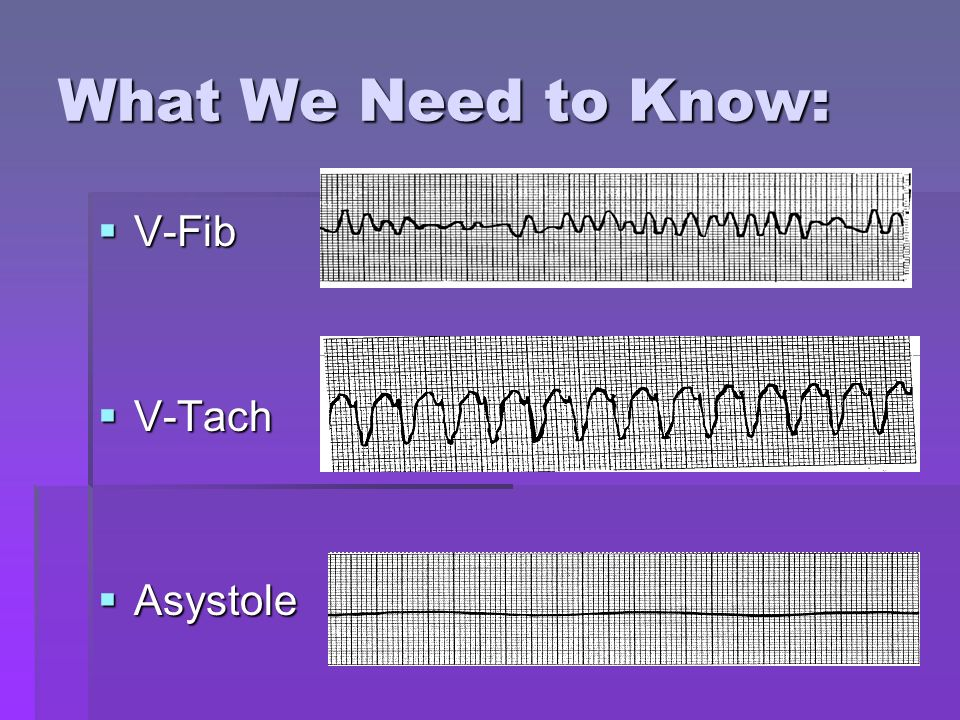 What We Need to Know: V-Fib V-Tach Asystole