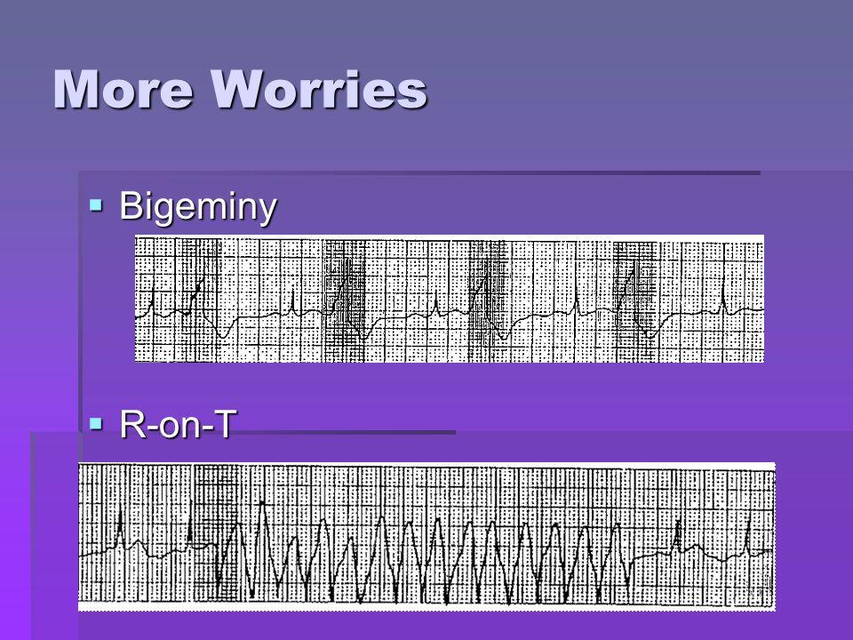 More Worries Bigeminy R-on-T