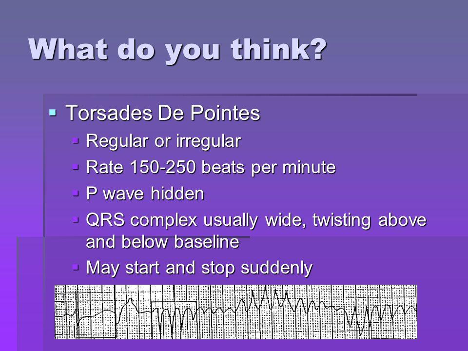 What do you think Torsades De Pointes Regular or irregular