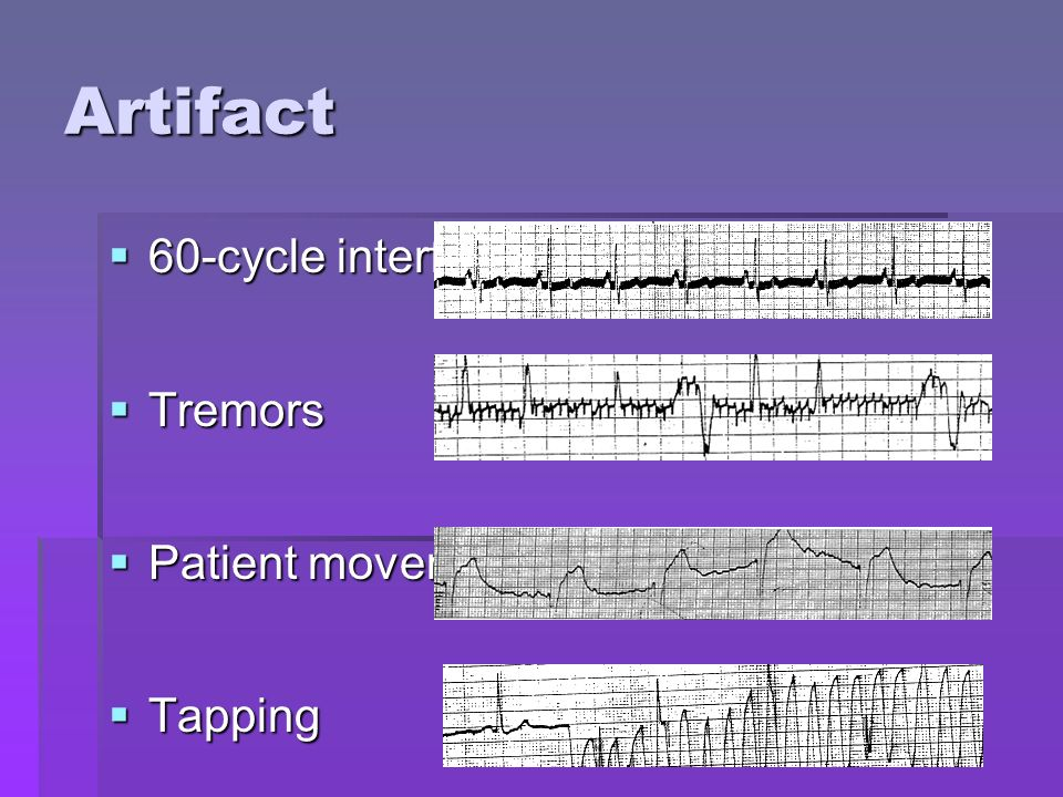 Artifact 60-cycle interference Tremors Patient movement Tapping