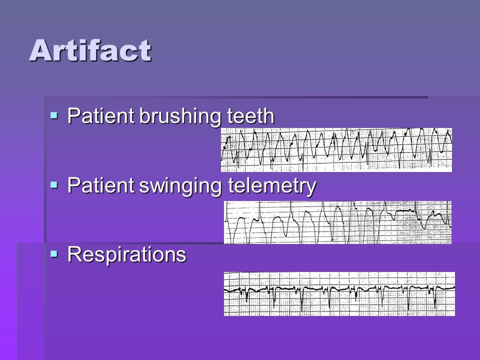 Artifact Patient brushing teeth Patient swinging telemetry