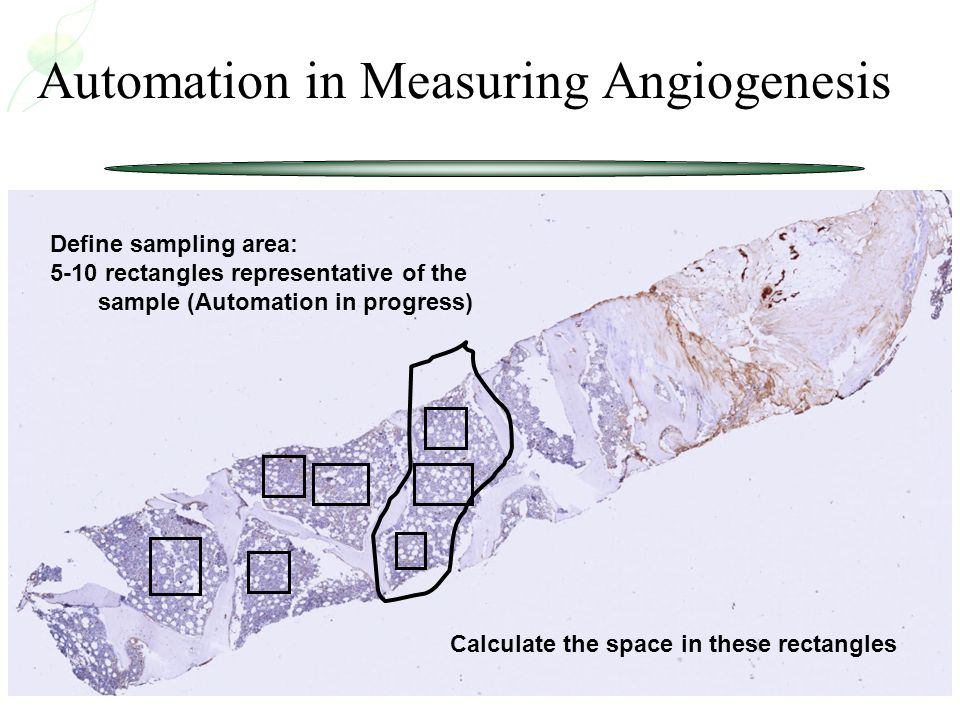 Automation in Measuring Angiogenesis