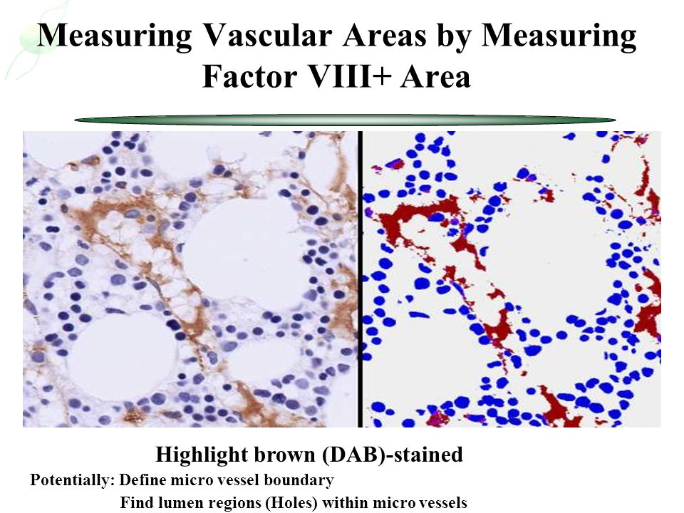 Measuring Vascular Areas by Measuring Factor VIII+ Area