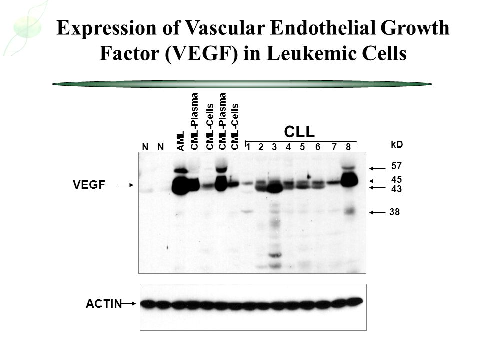 Expression of Vascular Endothelial Growth Factor (VEGF) in Leukemic Cells