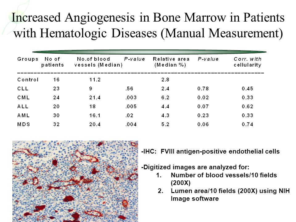 Increased Angiogenesis in Bone Marrow in Patients with Hematologic Diseases (Manual Measurement)