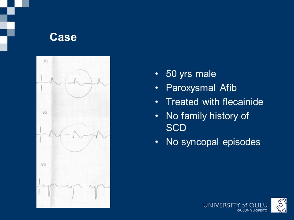 Case 50 yrs male Paroxysmal Afib Treated with flecainide