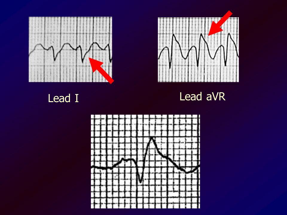 Lead I Lead aVR