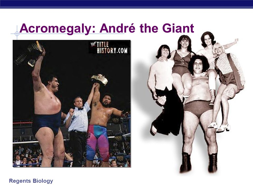 Acromegaly: André the Giant