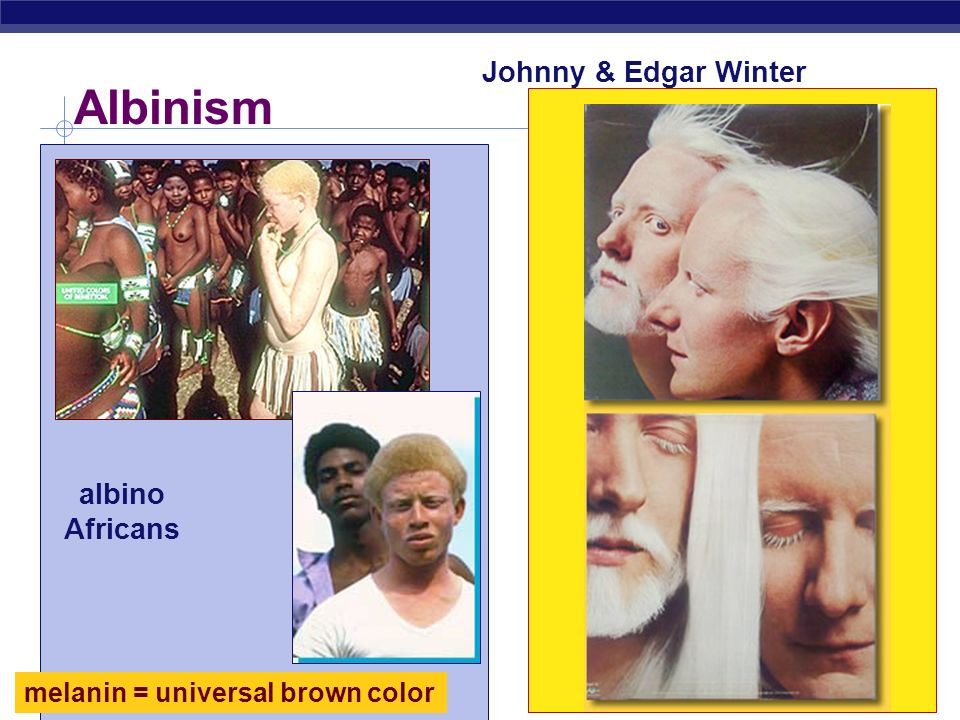 Albinism Johnny & Edgar Winter albino Africans